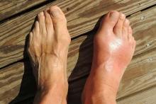 Вальгусная деформация пальцев ног